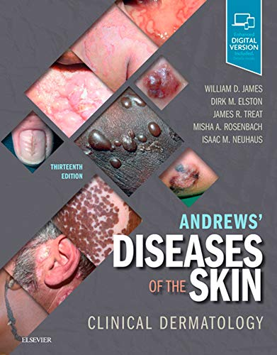 Andrews' Diseases of the Skin E-Book: Clinical Dermatology (English Edition)