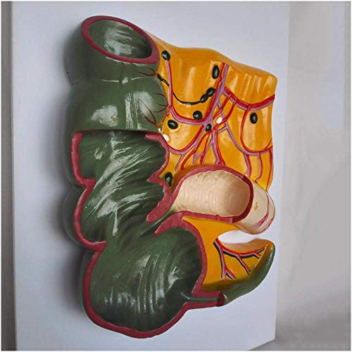 SLRMKK Human Appendix Cecum Anatomy Model - Intestinal Anatomical Model - Human Organ Anatomical Model Intestinal Pathological Model - for Study Teaching