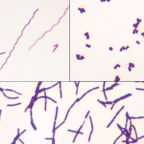 Bacteria Types Slide, Separate Smears, Gram Stain
