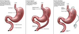 The Poster Corp Gwen Shockey/Science Source – Digestive System: Normal Gastric Band Bypass Artistica di Stampa (60,96 x 45,72 cm)