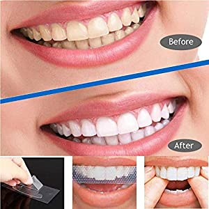 Teeth Whitening Kit Professional Effects 7Pairs (14Pcs)