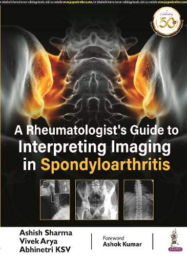 A Rheumatologist's Guide to Interpreting Imaging in Spondyloarthritis
