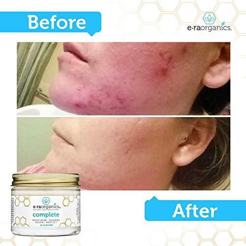 Natural & Organic Face Moisturizer Cream - Advanced 10-In-1 Non Greasy Daily Facial Cream with Aloe Vera, Manuka Honey, Coconut Oil, Cocoa Butter & More For Oily, Dry, Sensitive Skin Care Era-Organics