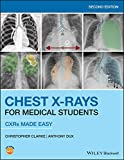 Chest X-Rays for Medical Students: CXRs Made Easy (English Edition)
