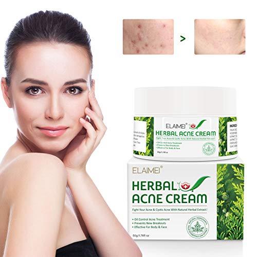 Crema para el acné, Crema contra las espinillas, Crema contra el acné, Tratamiento para el acné Elimina las espinillas, Elimina las manchas de la piel, Equilibra el agua y el aceite - 50 g