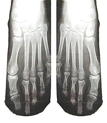 Paire de chaussettes radiographie des pieds