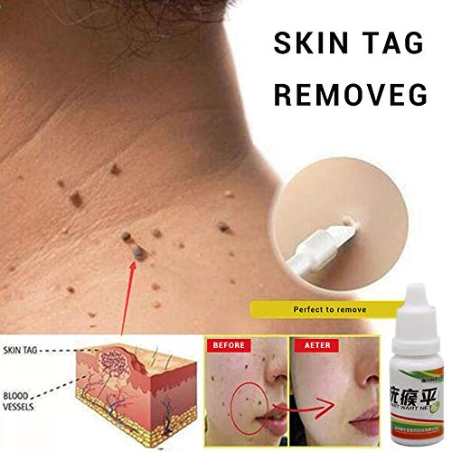 10 ml Skin Tag Remover verrugas Tratamiento pies Maisentferner Liquid Natural Painless Mole Remover