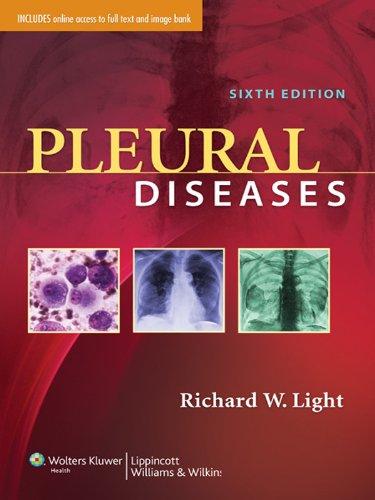Pleural Diseases - http://medicalbooks.filipinodoctors.org