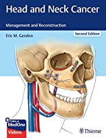 Head and Neck Cancer: Management and Reconstruction