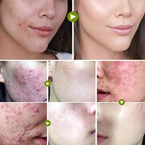 Crema antiacné facial Crema antiacné, Crema de árbol de té, Cuidado de la piel para niñas Mujeres