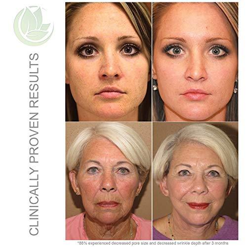 Microderm GLO Advanced Skincare Bundle Includes Diamond Microdermabrasion System