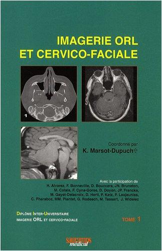 Imagerie orl et cervico-faciale