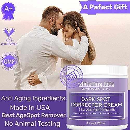 Skin Whitening Cream for Face. Dark Spot Corrector Best Age Spot Remover Hands, Body 4 OZ