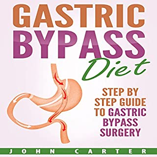 Gastric Bypass Diet: Step by Step Guide to Gastric Bypass Surgery audiobook cover art
