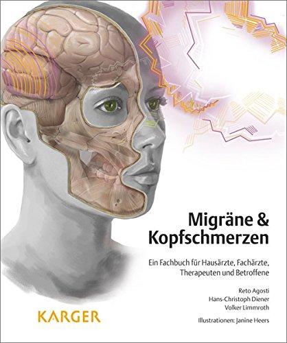 Migräne und Kopfschmerzen: Ein Fachbuch für Hausärzte, Fachärzte, Therapeuten und Betroffene: Ein Fachbuch für Hausärzte, Fachärzte, Therapeuten und Betroffene Illustrationen: J. Heers.