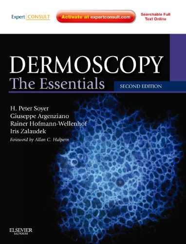 Dermoscopy: The Essentials: Expert Consult - Online and Print