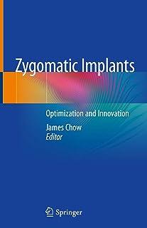 Zygomatic Implants: Optimization and Innovation