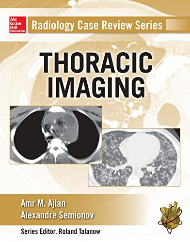 Radiology Case Review Series: Thoracic Imaging (English Edition)