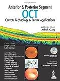 Anterior   Posterior Segment OCT: Current Technology   Futur