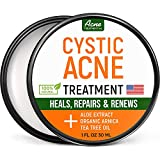 Best Cystic Acne Treatments - Cystic Acne Treatment and Acne Scar Remover Review