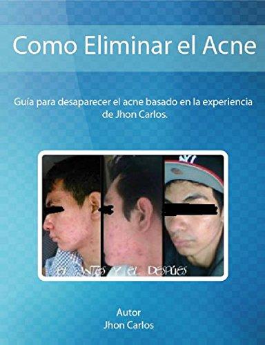 Como Eliminar el Acne basado en la Experiencia de Jhon Carlos: Guia para desaparecer el acne y sus secuelas con metodos naturales