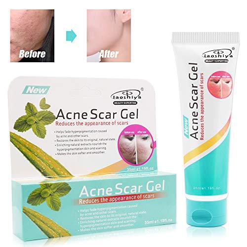 Miriqi Gel Acne,Acne Gel, Acne Removal Gel, Gel Viso Acne Extra Forte Naturale- Anti Acne, Aiuta a bilanciare l'acqua e l'olio del viso, rimuovere l'acne