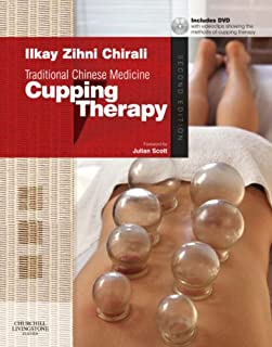 cupping cost