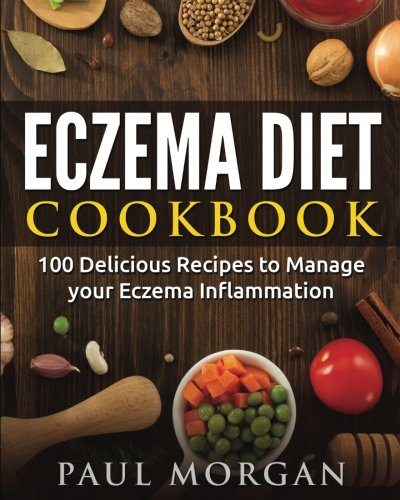 Eczema Diet Cookbook: 100 Delicious Recipes to Manage your Eczema Inflammation (Dermatitis Series Cookbook)
