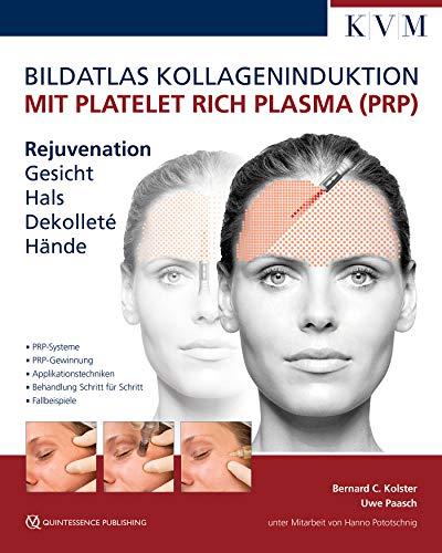 Bildatlas Kollageninduktion mit Platelet Rich Plasma (PRP): Rejuvenation Gesicht - Hals - Dekolleté - Hände
