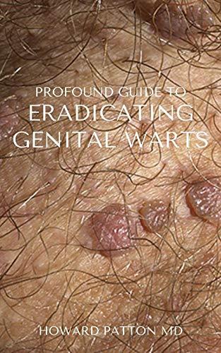 PROFOUND GUIDE TO ERADICATING GENITAL WARTS : The...