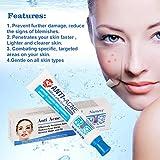 Zoom IMG-2 acne crema anti cicatrici viso