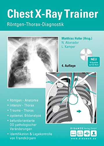 Chest-X-Ray Trainer: Röntgen-Thorax-Diagnostik