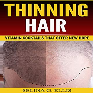 Thinning Hair: Vitamin Cocktails That Offer New Hope cover art