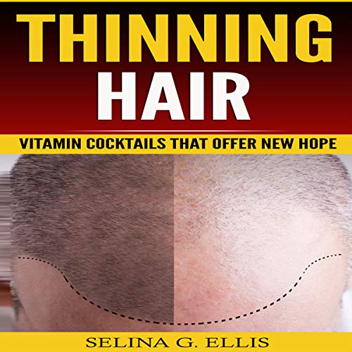 Thinning Hair: Vitamin Cocktails That Offer New Hope audiobook cover art