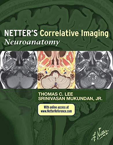 Netter's Correlative Imaging: Neuroanatomy: with NetterReference.com Access, 1e (Netter Clinical Science)