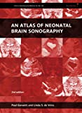 An Atlas of Neonatal Brain Sonography: (CDM 182-183) (Clinics in Developmental Medicine (182), Band 182)