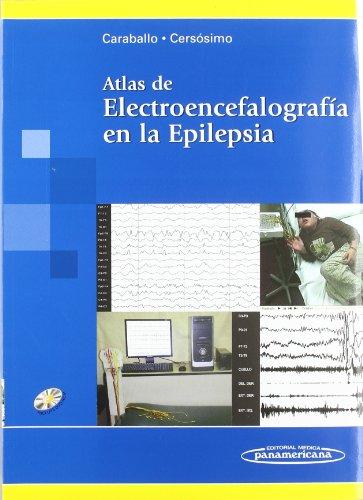 Atlas de Electroencefalografía en la Epilepsia (Spanish Edition)