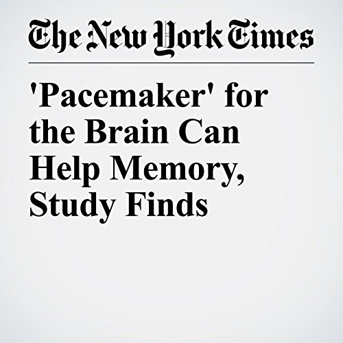 'Pacemaker' for the Brain Can Help Memory, Study Finds copertina