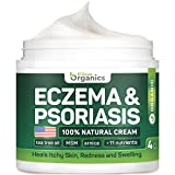 Psoriasis & Eczema Cream - Natural Eczema Treatment with Tea Tree Oil, MSM, Honey & Arnica - Made in USA - Powerful Dermatitis, Irritation & Psoriasis Treatment - Steroid-Free Psoriasis Cream - 4OZ
