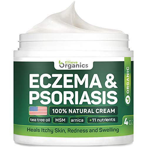 Psoriasis amp Eczema Cream  Natural Eczema Treatment with Tea Tree Oil MSM Honey amp Arnica  Made in USA  Powerful Dermatitis Irritation amp Psoriasis Treatment  SteroidFree Psoriasis Cream  4OZ