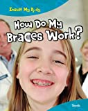 How Do My Braces Work?: Teeth (Inside My Body)