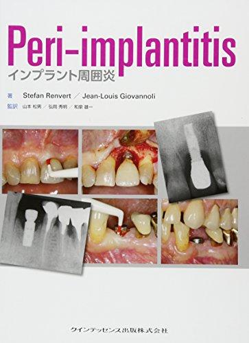 Peri-implantitisの詳細を見る