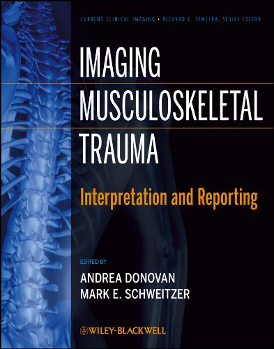 Imaging Musculoskeletal Trauma: Interpretation and Reporting (Current Clinical Imaging Book 6) (English Edition)