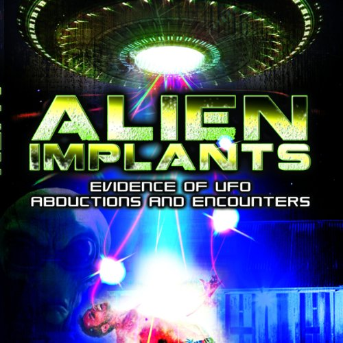 Alien Implants audiobook cover art