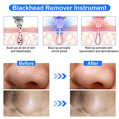 Blackhead Remover Vacuum-Pore Cleaner Vacuum Electric Suction Facial Comedo Acne Extractor Tool with LED Display for Women & Men (Grey)
