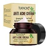 Best Cream For Pimples - Anti Acne Cream, Acne Removal Cream, Anti Pimple Review