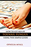 How to Get Rid of Toenail Fungus Using This Simple Guide