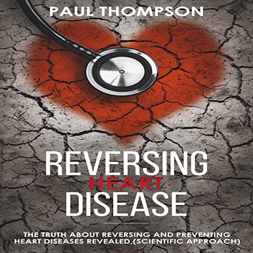 Reversing Heart Disease: The Truth About Reversing and Preventing Heart Diseases Revealed (Scientific Approach) audiobook cover art