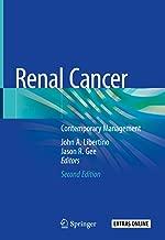 Renal Cancer: Contemporary Management