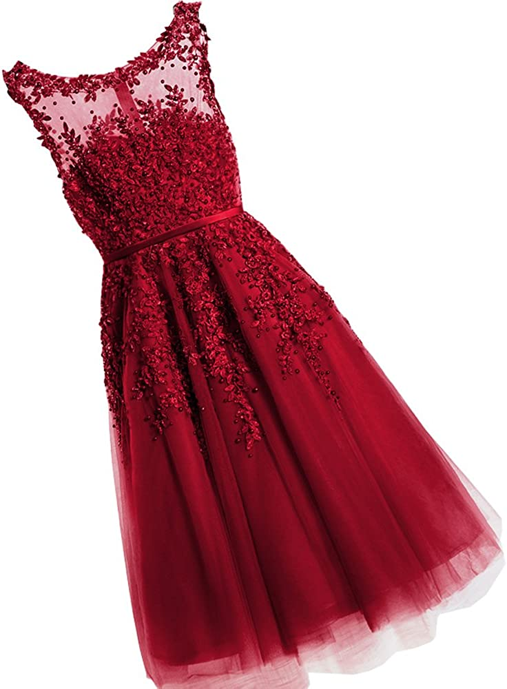 WDING Women Short Evening Dress Prom Dress Lace With Pearls Cocktail Party Gowns